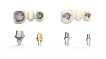 To the left: ATLANTIS patient-specific CAD/CAM abutment To the right: Stock abutments